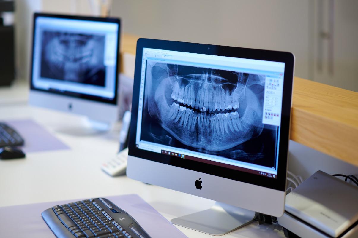 Digitale Röntgenbilder